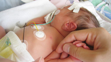 Mengenal 5 Jenis Penyakit Bayi Yang Harus Diwaspadai Orang T